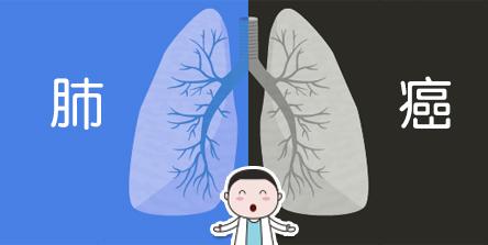 肺癌信达.jpg