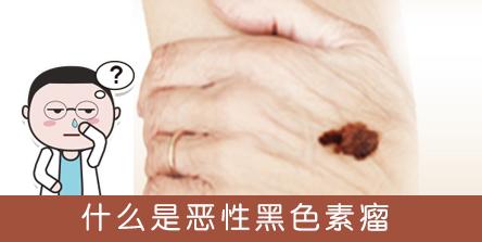 【恶性黑色素瘤】患者有机会免费使用新药pembrolizumab