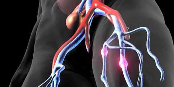 一款抗血栓药物——硫酸沃拉帕沙