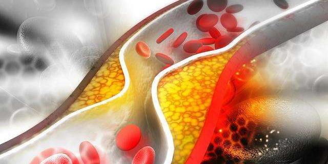 治疗高血脂的一些药物简介