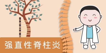 【强直性脊柱炎】患者有机会免费使用阿达木单抗(修美乐)