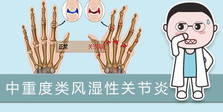 【中重度类风湿性关节炎】患者有机会免费使用托珠单抗皮下剂型