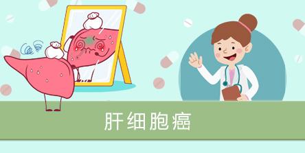 肝细胞癌.jpg