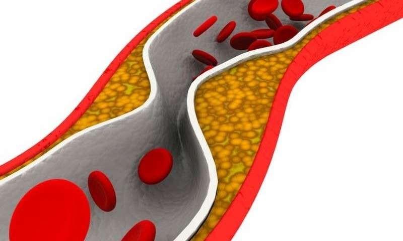 在多发性骨髓瘤中,高水平的酶ADAR 1与低生存率有关