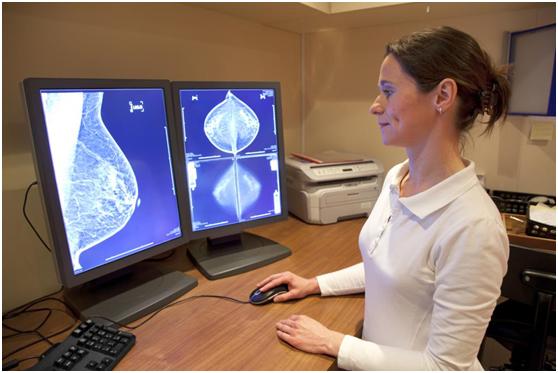 乳腺癌和卵巢癌:大型研究提高了对遗传风险评估的准确性