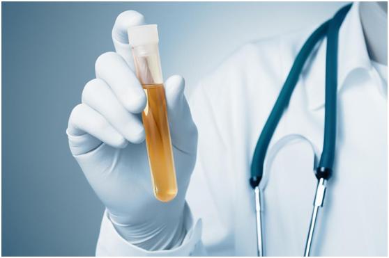 膀胱癌:无创性尿液检测结果更准确