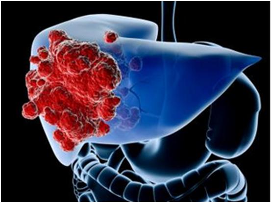 各种肺癌类型都有哪些特征?