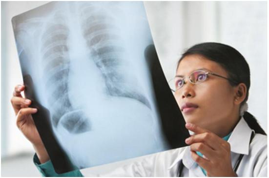 小细胞肺癌与非小细胞肺癌的诊断与分期