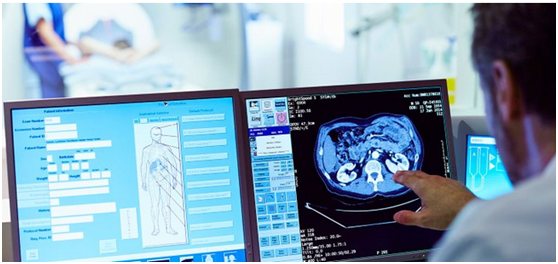 肺癌风险:你应该筛查吗?