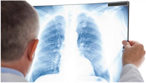 肺癌与血栓有关?