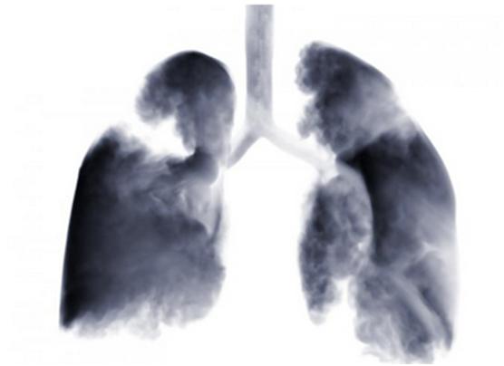 胸部放疗可延长小细胞肺癌患者的生存期并减少其复发