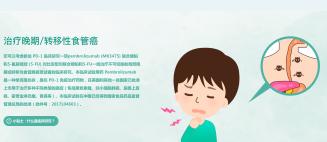 【食管癌】治疗晚期/转移性食管癌患者,您可以考虑参加PD-1临床研究