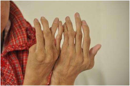 类风湿性关节炎如何累及身体不同部位(之一)