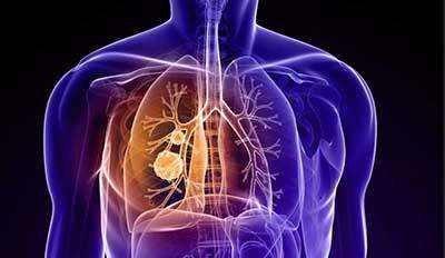发现致命型肺癌的新弱点