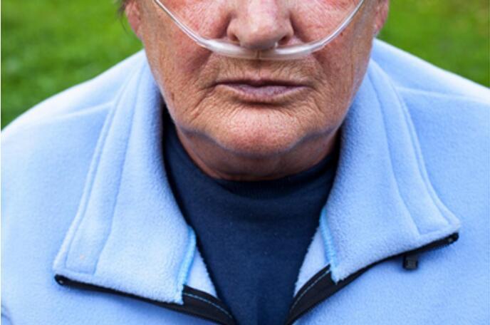 类风湿关节炎可能增加COPD的风险