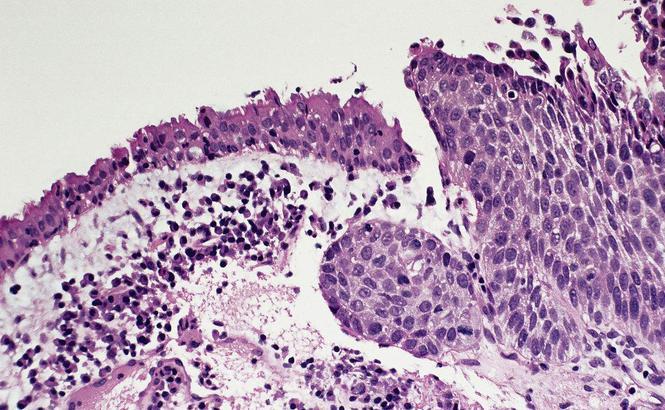 周围型肺鳞癌的预后因素分析