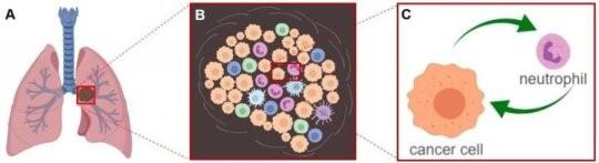 肺癌肿瘤细胞可以其周围的免疫细胞发生相互作用
