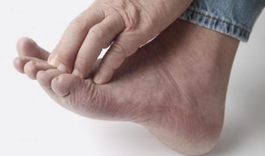 盘状特应性皮炎的原因和治疗
